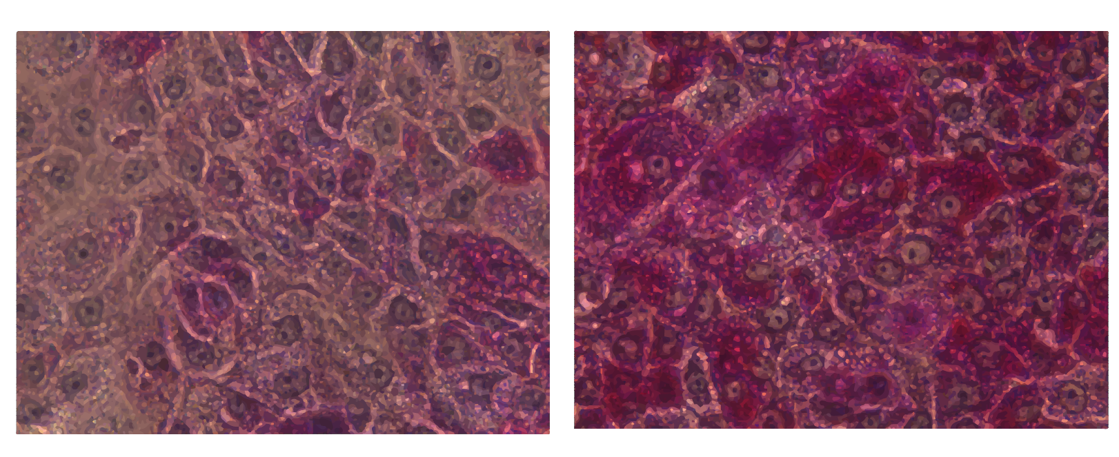 DefiniGEN PAS Staining GSD1a disease modelled hepatocytes